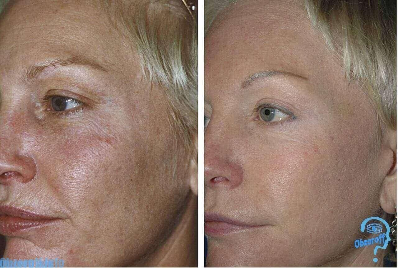 Results Before and After Collagen Hyaluron