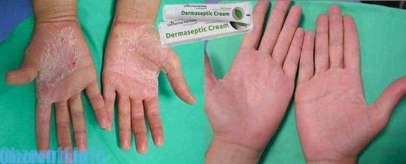 Crema dermaseptic per il trattamento della psoriasi
