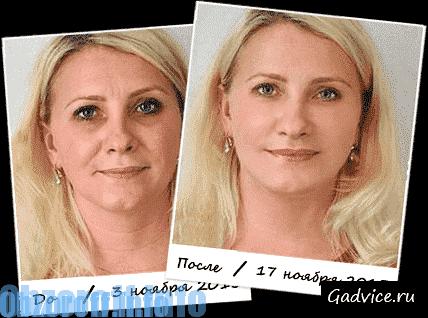 регенерация кожи лица
