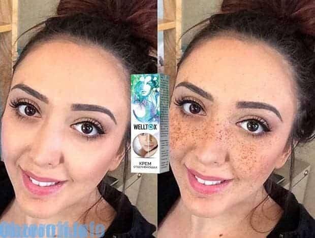 Le résultat de l'utilisation de la crème pour éclaircir la peau