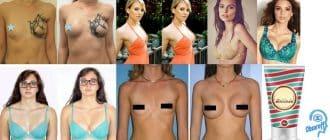Bellinda Bust Size Cream – non surgical na pampalaki ng dibdib