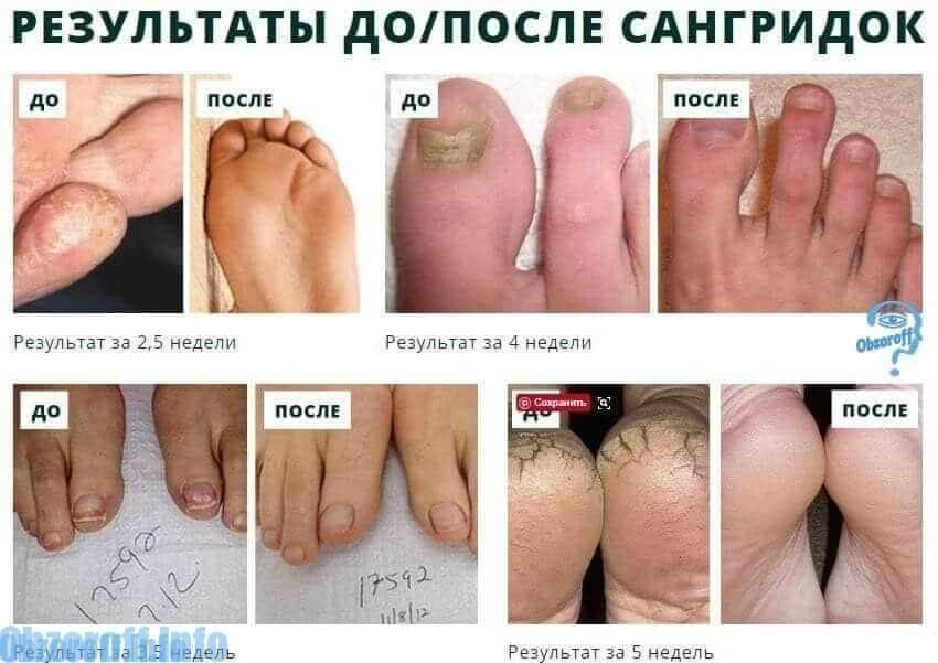Resultados de Sangridok antes y después