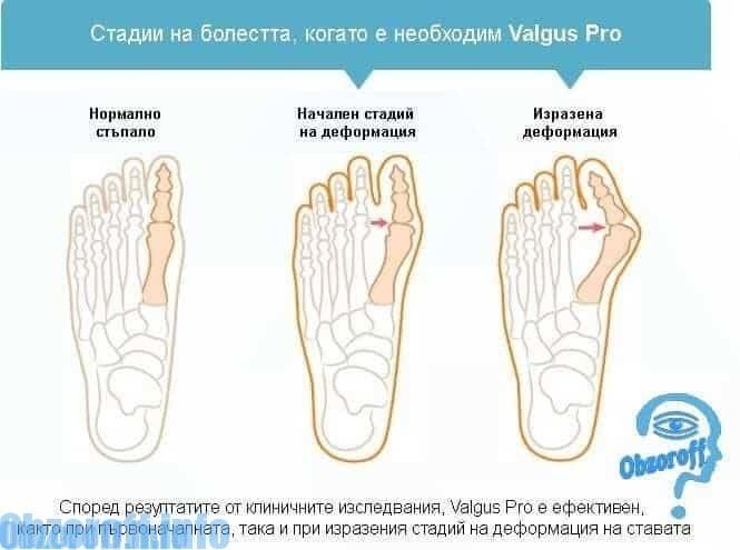 Как се използва шината Valgus Pro за корекция на деформацията на палеца