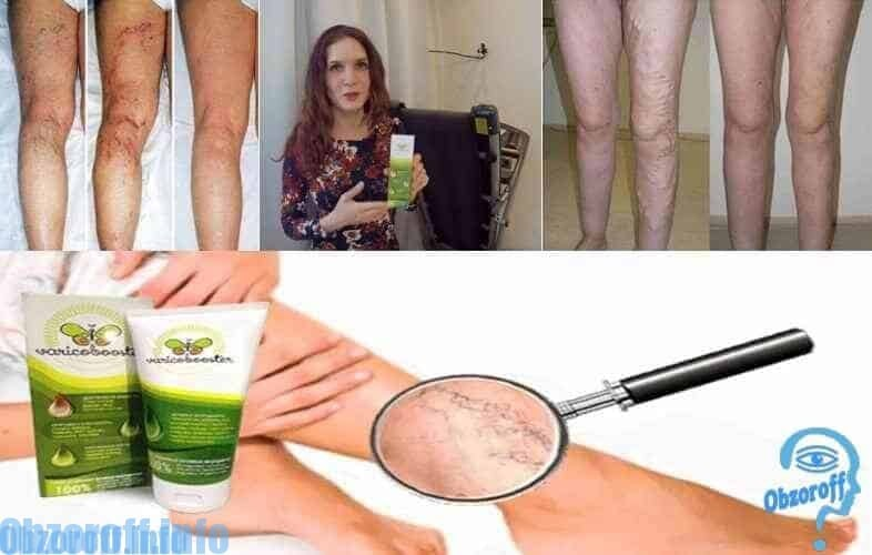 Як Варікобустер лікує варикоз