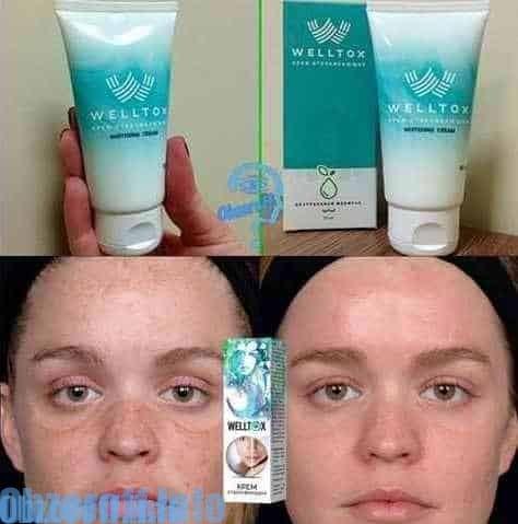 Mga Pakinabang ng Welltox Cream sa Pagpapagaling ng Balat