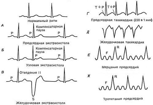 أنواع عدم انتظام ضربات القلب عند الأطفال