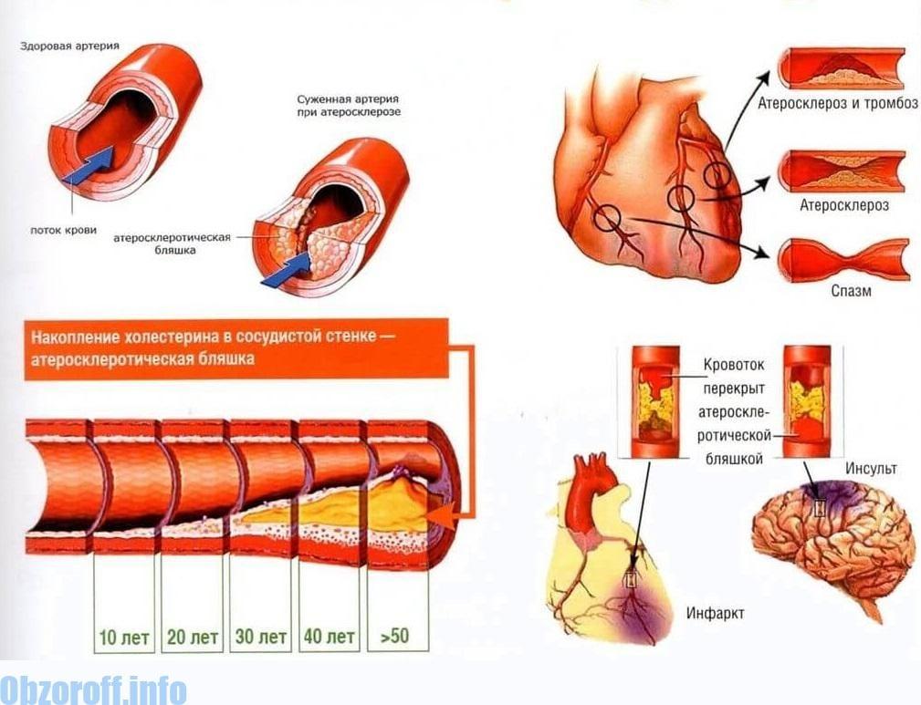 Атеросклероз ва аломатҳо