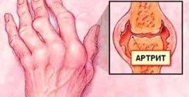 artrit ruk - 7
