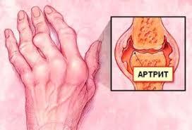 Rhumatologie et divers types d'arthrite