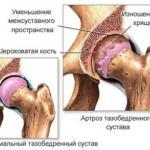 Артроз тазобедренного сустава и методы лечения