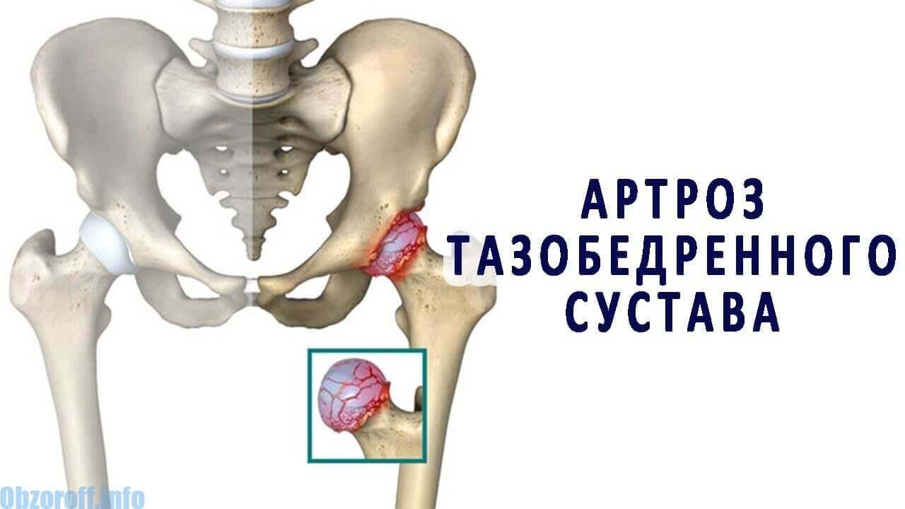 Artróza bedra