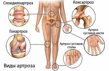 Types of Arthrosis of the Joints