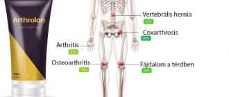 Arthrolon krém az ízületek kezelésére és rehabilitációjára