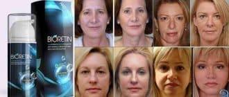 Bioretin per la rigenerazione della pelle e la rimozione delle rughe
