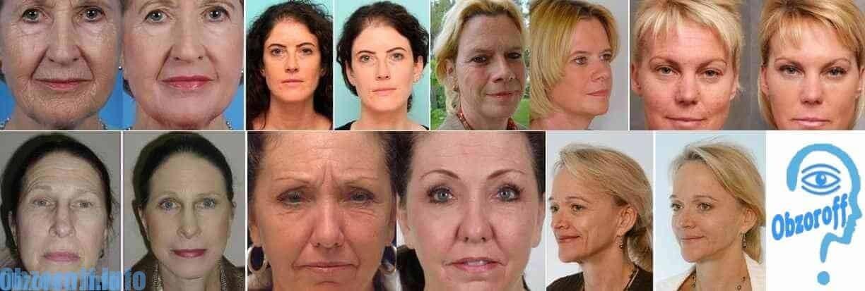 Wynik przed i po zastosowaniu kremu na bioretynę do odmładzania skóry