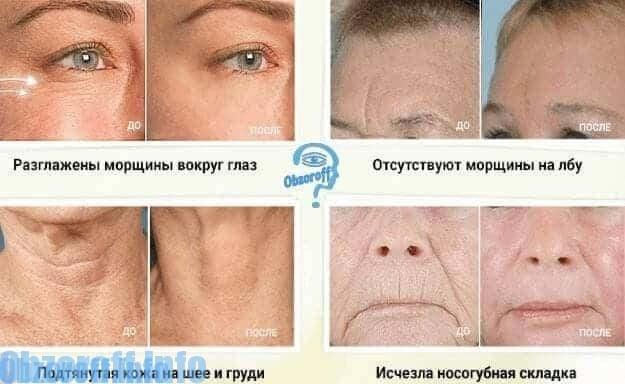 rezultatul utilizării Botox Asset