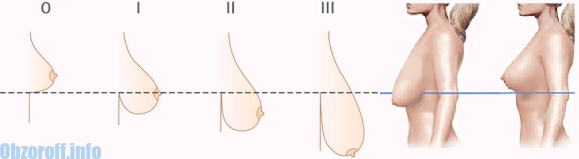 De ce săgeți sânii