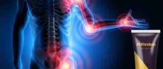 Arthrolon cremă pentru tratamentul și reabilitarea articulațiilor