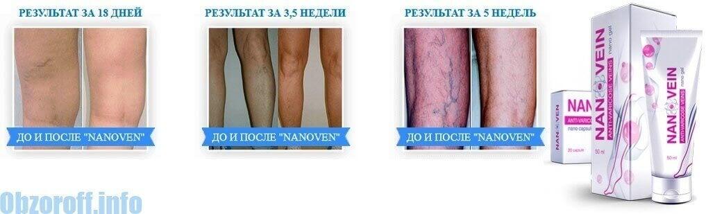 Результат применения крема Нановен