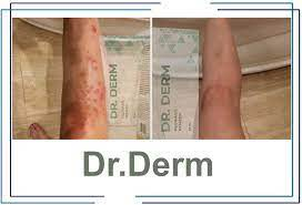 Dr. Derm para el tratamiento de la psoriasis: instrucciones, revisiones, precio.