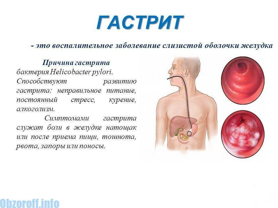 The cause of gastritis
