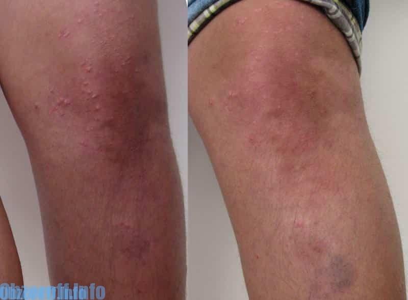Krema Psoridex za hitro zdravljenje psoriaze