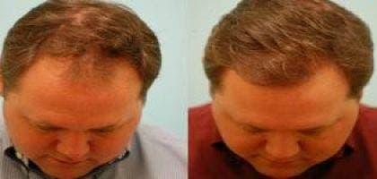 hairline_and_central_density_hair_restoration_20090123_2027468051 (Копировать)