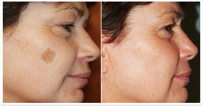 Keputusan sebelum dan selepas menggunakan Milk Skin