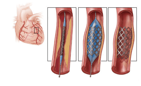 أمراض القلب التاجية