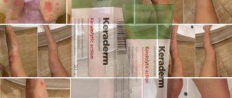 Keraderm voor de behandeling van psoriasis: beschrijving van de crème, instructies