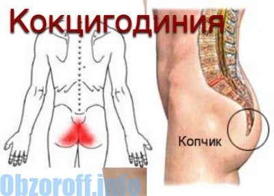Coccyalgia - pain in the coccyx