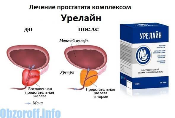 Prostatitin müalicəsi və qarşısının alınması