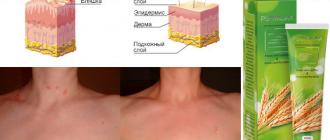 lechenie psoriaza gelem psorilax - 5