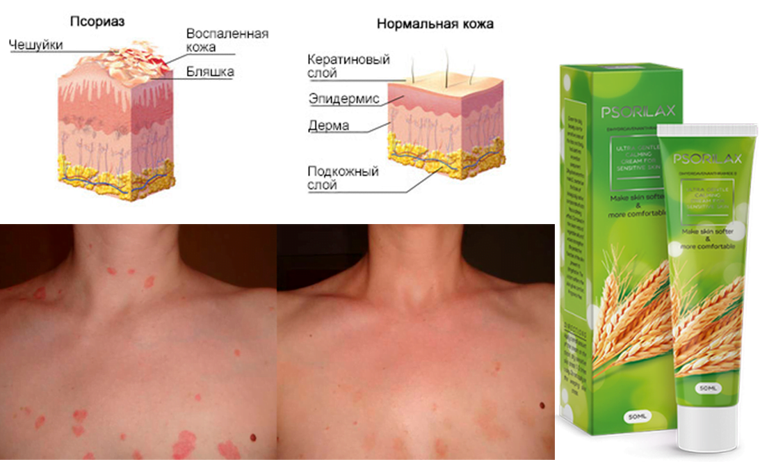 Gel Psorilax for the treatment of psoriasis