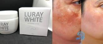 Luray White ครีมลดฝ้าหน้าขาว Welltox