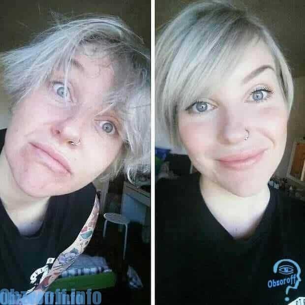 Trước và sau khi áp dụng Mabel Meg Lumilixir