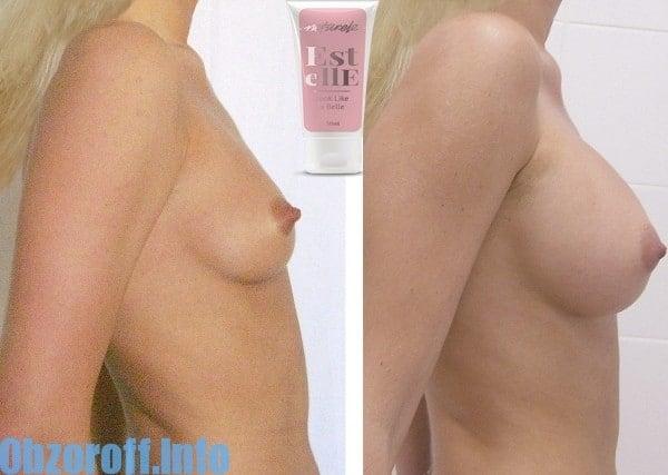 ครีม Estelle สำหรับเสริมเต้านมและเร่งการเติบโตของหน้าอก