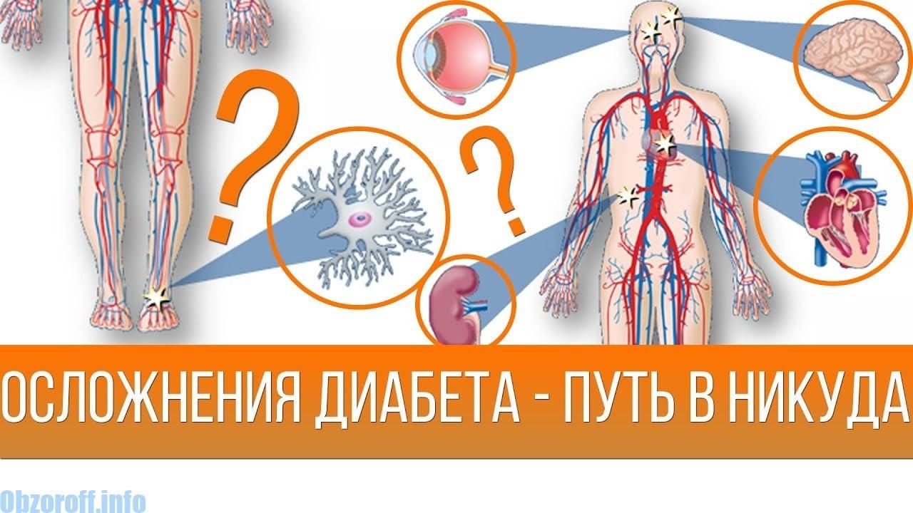 tinktūros sveikata sergant hipertenzija