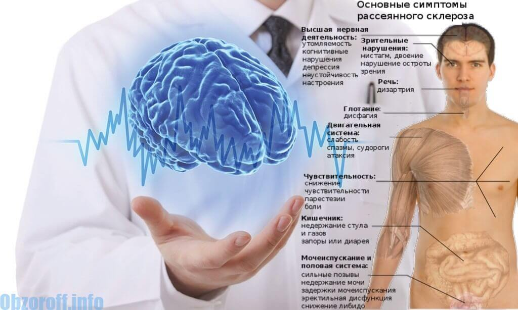 Multiplās sklerozes simptomi