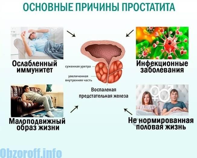 Xroniki prostatitin səbəbləri