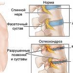 Osteokondroz necə davam edir: Periartroz və Coccygodynia