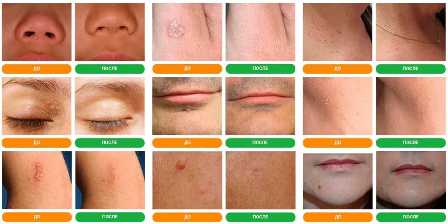 Results before and after application Papiderm