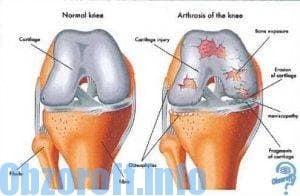 Hondrocream gelis nuo reumato ir skausmo raumenyse ir sąnariuose