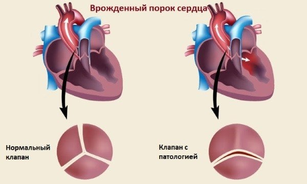 Сърдечно заболяване