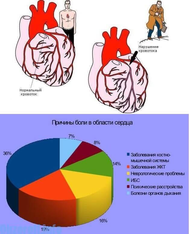 გულში ტკივილის მიზეზები