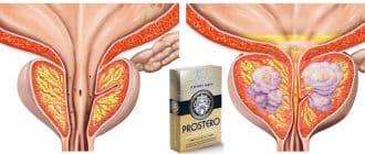 ProstEro: Behandlung von Prostatitis und Wiederherstellung der Erektion