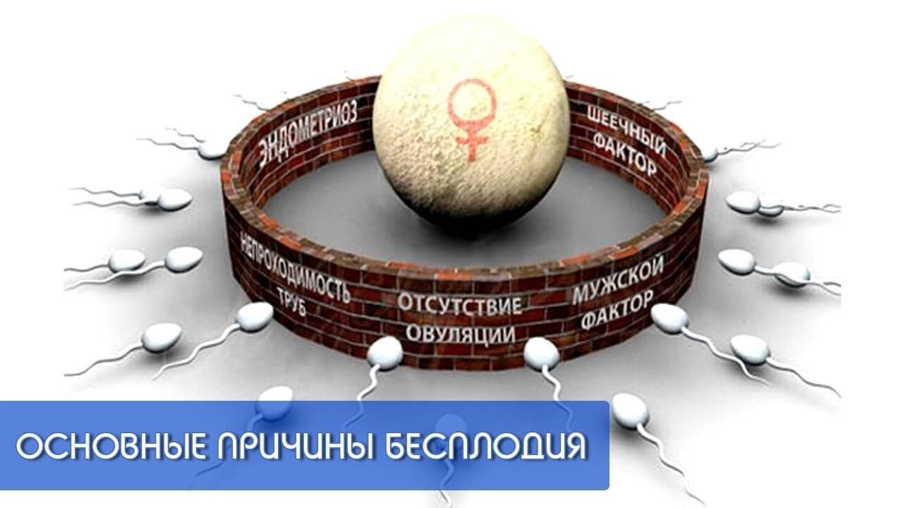 prichiny besplodiya - 5