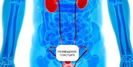 How to apply a urological patch for men