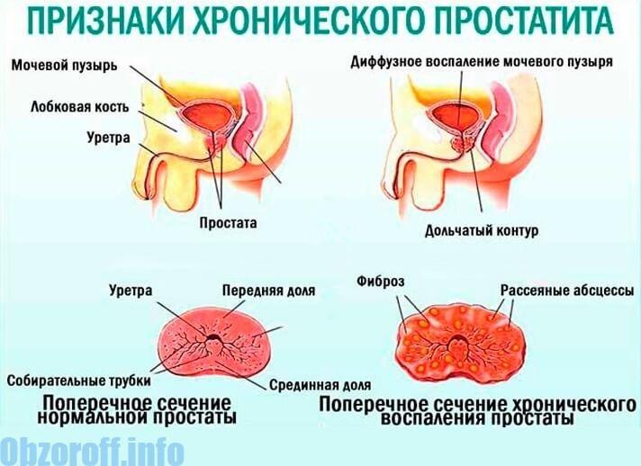 Xroniki prostatitin əsas əlamətləri