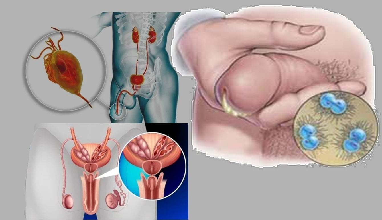 La prostatite et les causes de brûlure dans l'urètre